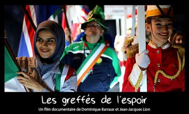 Visueel van project Les Greffés de l'espoir